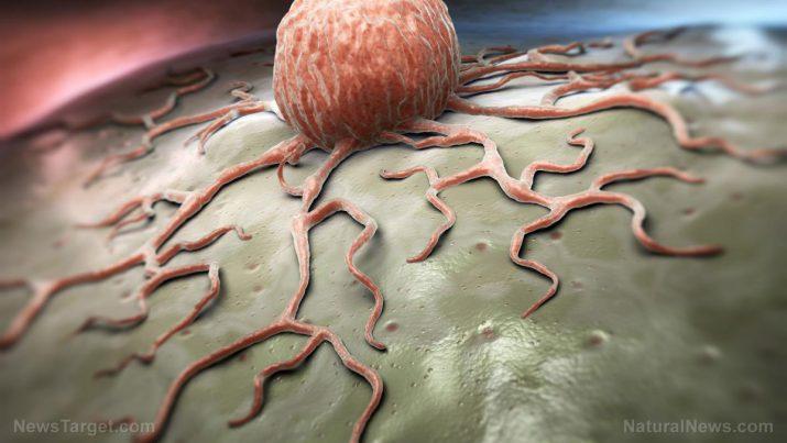 Infecção por Acinetobacter: causas, efeitos colaterais e tratamentos