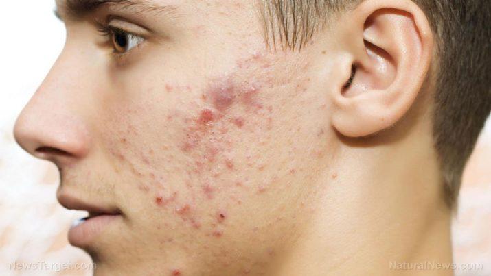Acne: causas, efeitos colaterais e tratamentos