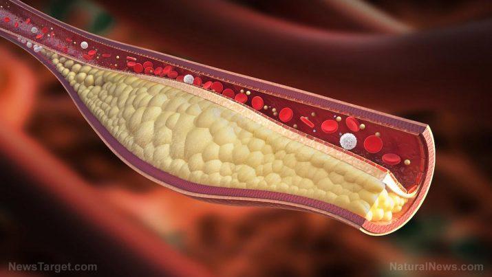 Sinvastatina: usos, riscos à saúde e efeitos colaterais