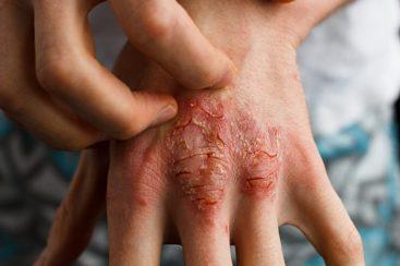 Vectical: usos, riscos à saúde e efeitos colaterais