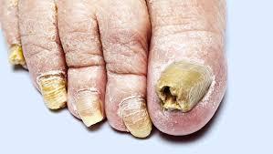 Onicomicose – causas, sintomas e tratamentos