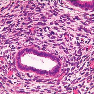 Sarcoma botryoides – causas, sintomas e tratamentos