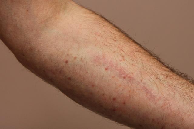 Trombocitopenia – causas, sintomas e tratamentos