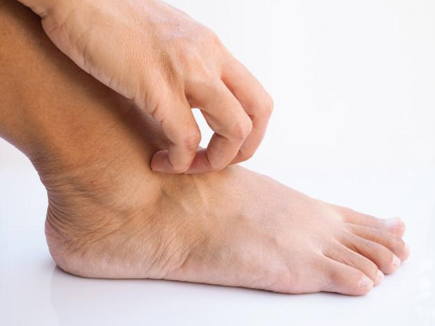 Tungíase – causas, sintomas e tratamentos