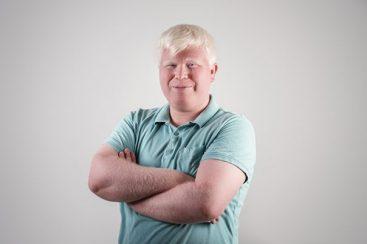 Albinismo – causas, efeitos colaterais e tratamentos