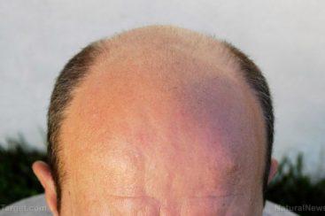 Alopecia – causas, efeitos colaterais e tratamentos