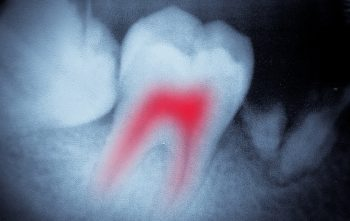 dental tooth x-ray film macro