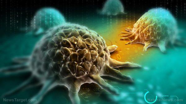 Rabdomiossarcoma alveolar – causas, efeitos colaterais e tratamentos