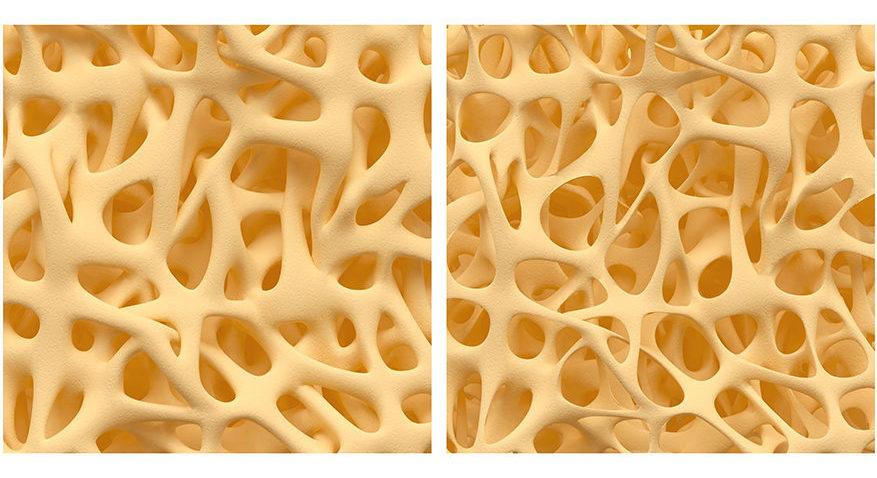 Vitamina A em teste: a vitamina A causa osteoporose?