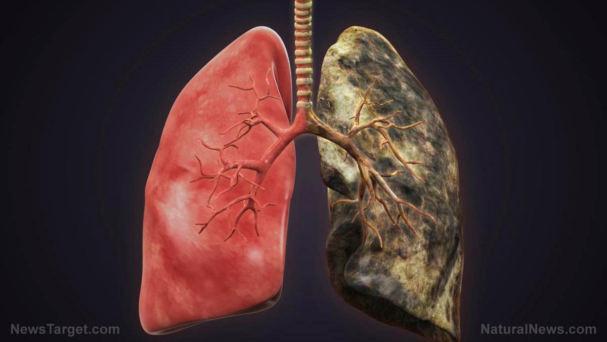 DPOC: semelhanças e diferenças entre enfisema e bronquite crônica