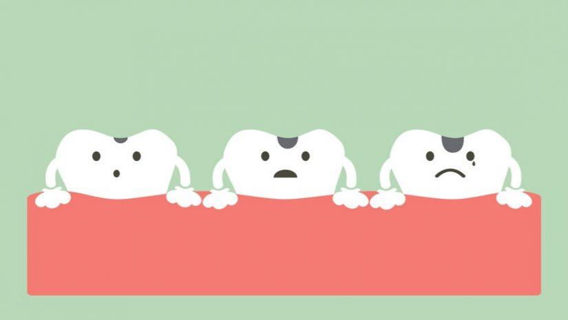 Use vitamina k2 para remineralizar seus dentes