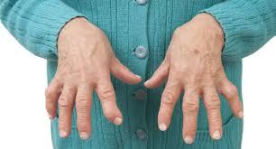 Artrite reumatóide: sintomas, causas e estratégias