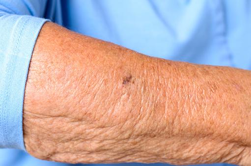 O papel da inflamação na aceleração do envelhecimento