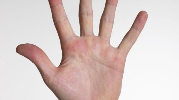 Esclerodermia: causas, sintomas e tratamentos naturais